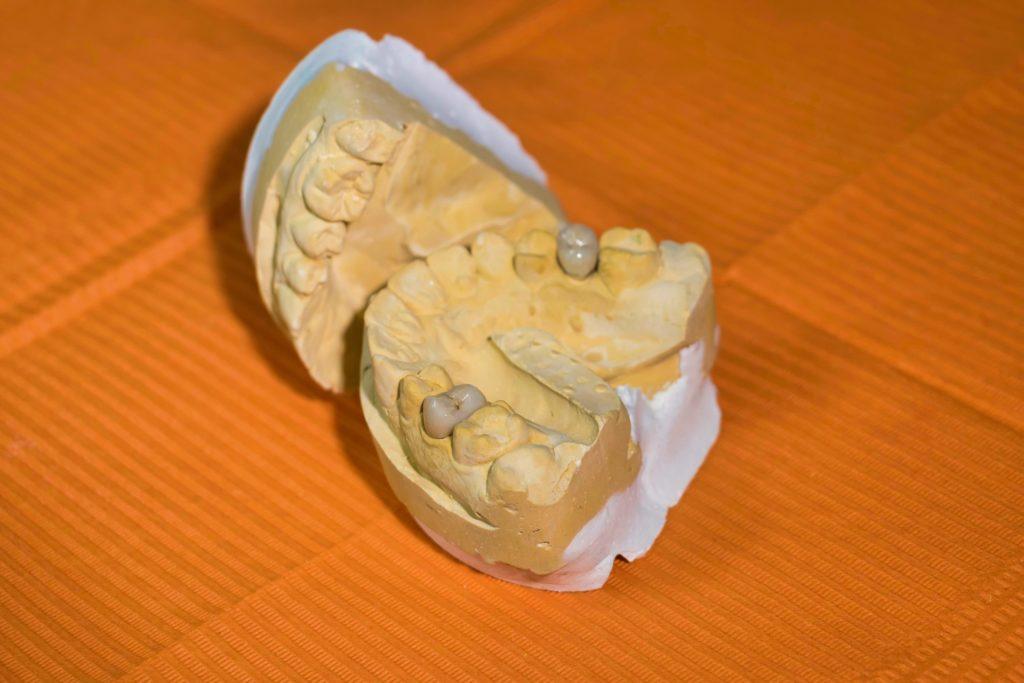 人間の歯のイメージ