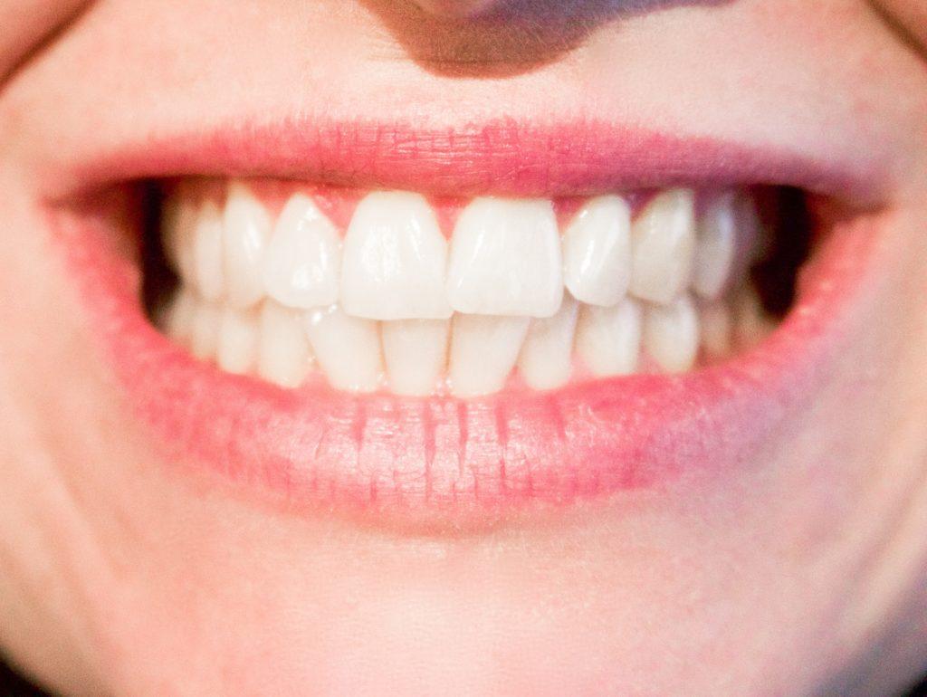 健康な歯のイメージ