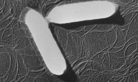 ボツリヌス菌電子顕微鏡写真