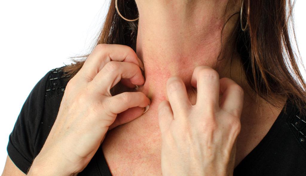 皮膚炎のイメージ