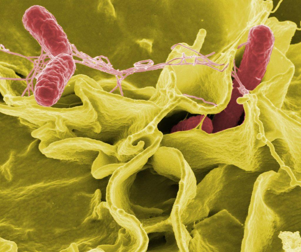 大腸菌の顕微鏡写真