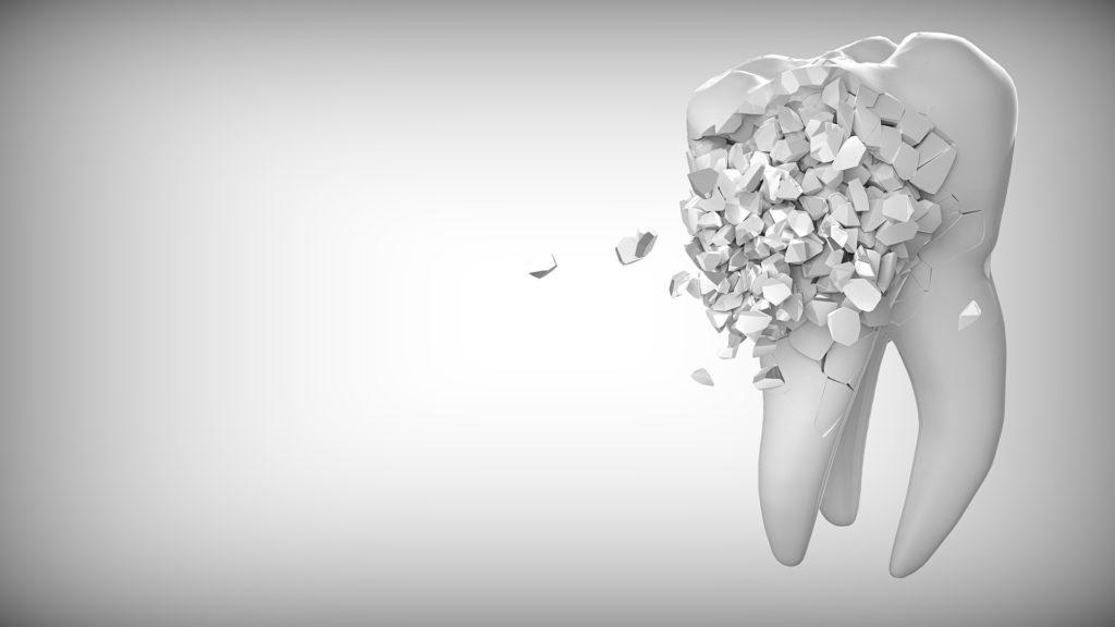 虫歯になっていくイメージ