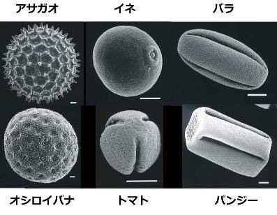 花粉の顕微鏡写真の一例